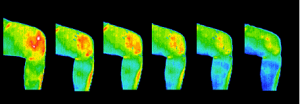 Thermography_Knee